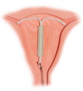 stérilet contraception